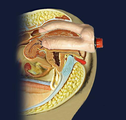 фото полового акта в разрезе вид изнутри под рентгеном
